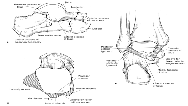 Core Knowledge: Calcaneal Fractures | ST3 Orthopaedic Interview ...
